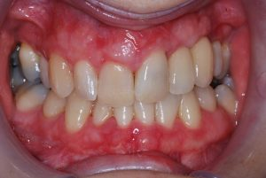 After Implant treatment Evesham Place Dental Stratford-upon-Avon