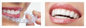 Evesham Place Dental Stratford-upon-Avon Invisalign before and after