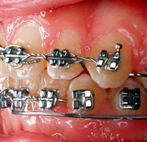 Orthodontics Evesham Place Dental Stratford-upon-Avon