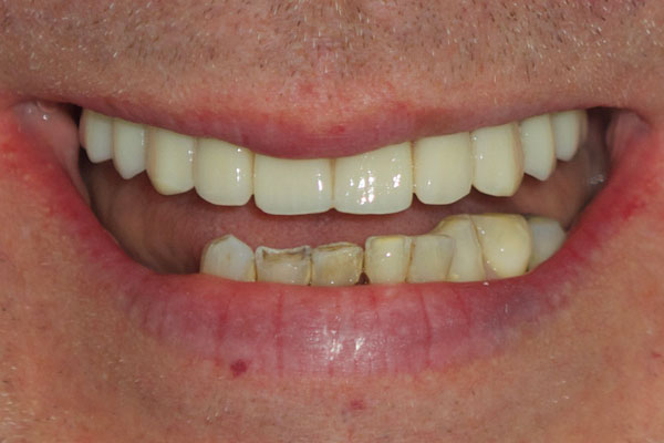 This patient came to see us with failing top and bottom teeth. As a result of his missing teeth he didn't like to smile