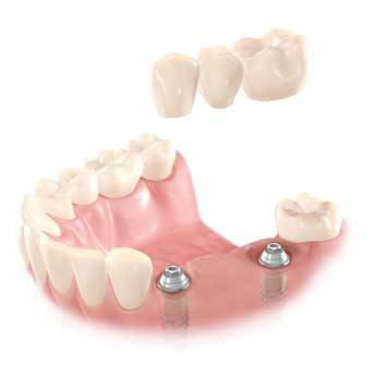 3-unit-bridge-on-2-implants