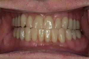 Care 1 dental implants complete photo