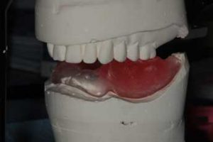 Case 2 dental implants mould photo