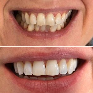 Invisalign before and after collage