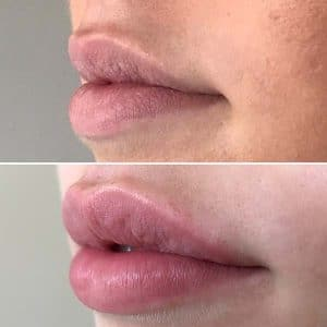 Lip fillers dr katharine cordner Evesham Place Dental Stratford Upon Avon