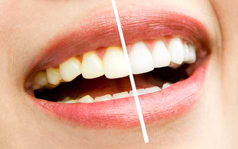 Home-teeth-whitening