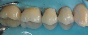 Dental onlay quadrant post operation