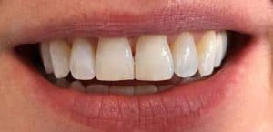 Invisalign post treatment