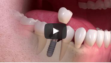 'Dental