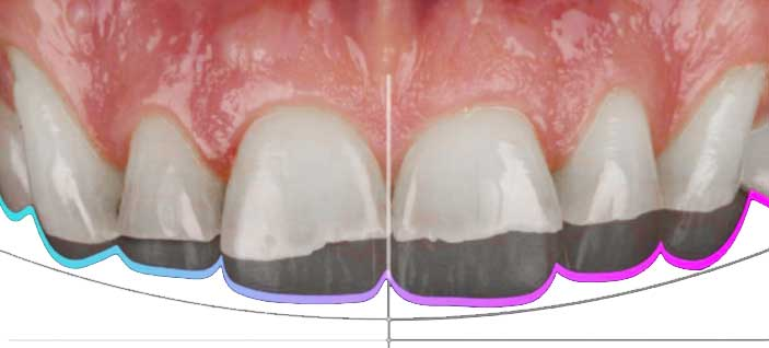 Damaged-teeth---Composite-Bonding-2---SmileFast