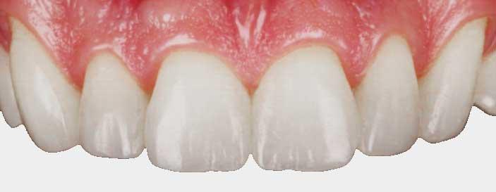 Damaged-teeth---Composite-Bonding-3---SmileFast