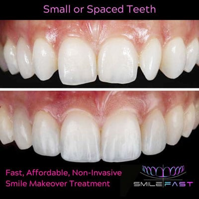 Smilefast teeth before and after